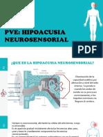 p Ve Neuro Sensorial