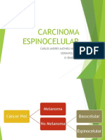 Cancer Espinocelular