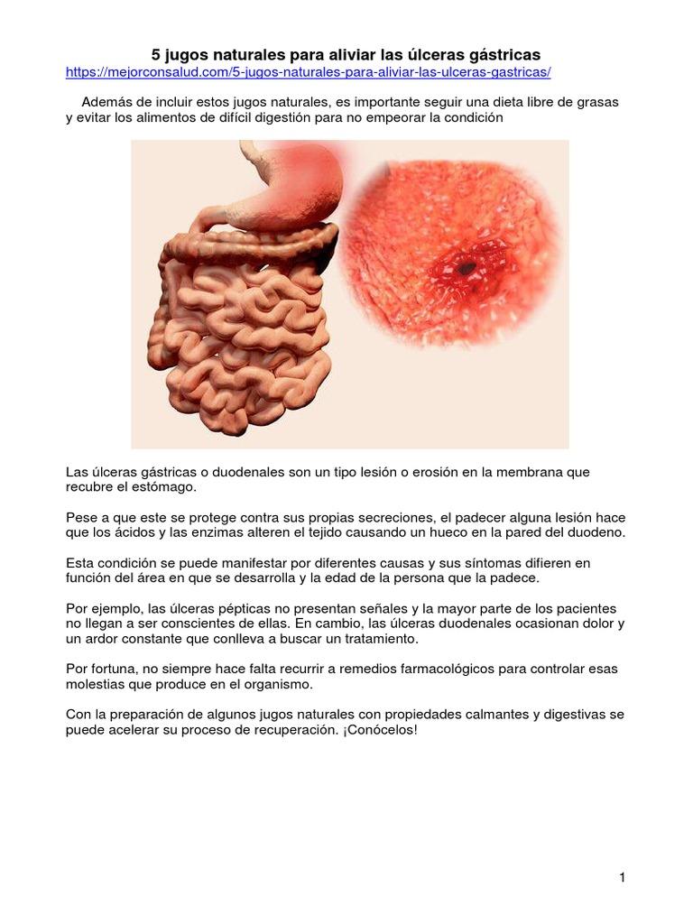 Dieta Pregnancy úlceras Estomacales Y Gastralgia Dieta Para Un Paciente Con úlcera Duodenal