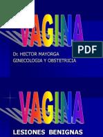 Benignas y Malignas de Vagina