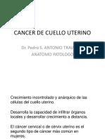Cancer de Cervix-1
