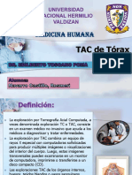 7 Navarro Castillo, Rosmeri - T.a.C. de Tórax (1)