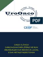 Carcinoma Papilífero de Rim - Abordagem da Recidiva Local e escolha da terapia sistêmica