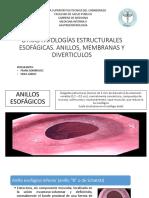 Otras Patologías Estructurales Esofágicas