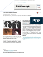 Tuberculosis Traqueobronquial