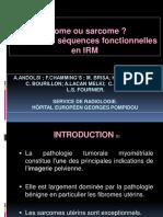 Fibrome Versus Sarcome IRM