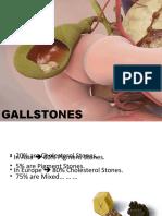 cholelithiasis-finalyearlecture-140511003220-phpapp01.pdf