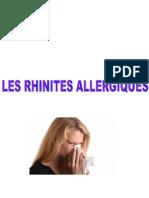 ortho rninites allergiques-1