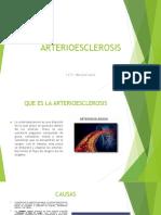 ARTERIOESCLEROSIS.pptx