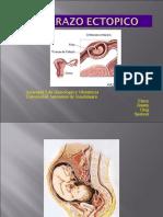 embarazo ectopico.pdf