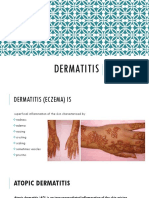 5. Dermatitis