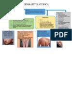 Mapa Dermatitis Atopica