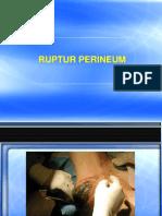 6. Ruptur Perineum