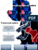 Fx y Reemplazo Total de Cadera