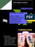 Tuberculosis[1]