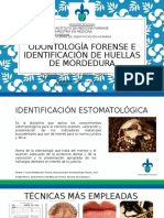Odontología Forense e Identificación de Huellas de Mordedura