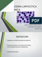 leucemialinfociticacronica-160204150530