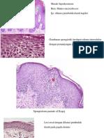 Histologi Psoriasis