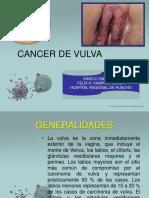 Cancer Vulvar 2018
