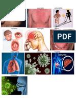 Viruela Sarampión Poliomielitis Tos Ferina Meningitis Difteria Tuberculosis Hepatitis