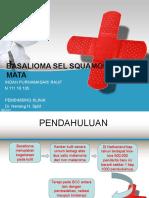 PPT REFERAT BASALIOMA.ppt