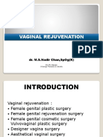 Vaginal Rejuvenation Edit1
