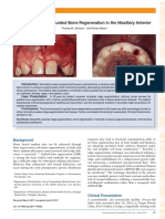 Tunnel Access for Guided Bone Regeneration in the Maxillary Anterior