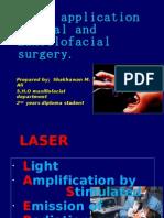 Laser 12