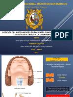 Hioides y divergencia facial