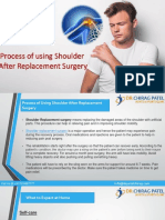 Using Shoulder After Replacement Surgery | Dr Chirag Patel