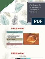 Pterigion y Catarata