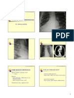 Foreign Body Oesophagus and Bronchus
