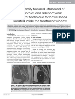 Highintensity Focused Ultrasound of Uterine Fibroids and Adenomyosis Maneuver Technique for Bowel