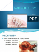 Nail Bed Injury