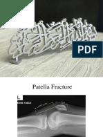 Patella fracture