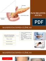Pancreatitis Aguda- Emergencias
