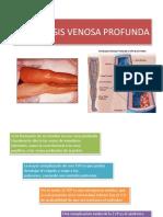 trombosisvenosaprofunda-140209204042-phpapp01.pdf