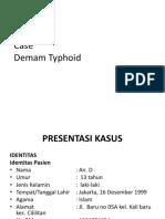 177334389-laporan-kasus-demam-typoid.ppt