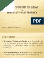 Tromboembolismo Pulmonar - Aula 4-1