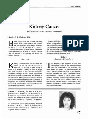 Kidney Cancer An Disease Treatment Kidney Metastasis