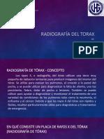 Radiografía Del Torax