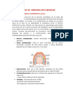 Tecnicas de Anestesia en El Maxilar