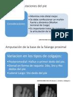 Tipos de Amputaciones del pie.pptx