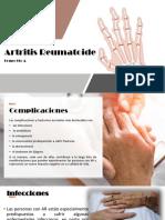 complicaciones-artritis.pptx