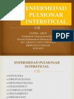3-Enfermedad Pulmonar Intersticial