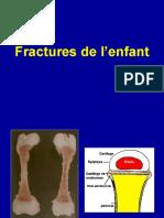 3- Fractures de l'Enfant