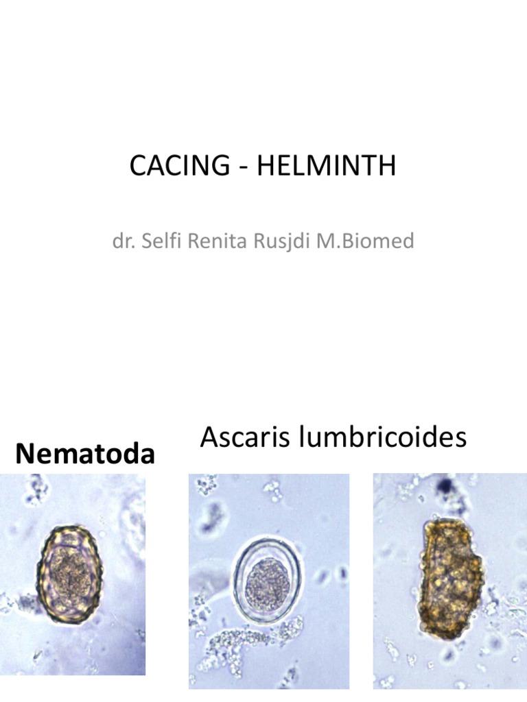 Cacing helminth, Cacing helminth. Hogyan lehet fertЕ'zni?