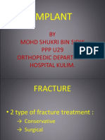Implant....
