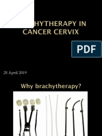 Brachytherapy in Cancer Cervix