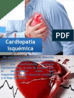 Cardiopatía Isquémica Erika